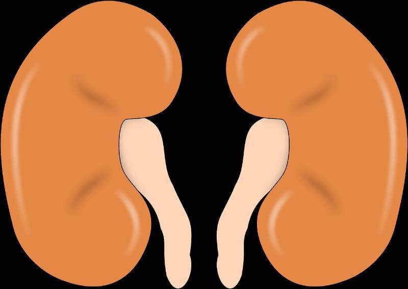 La colica renale