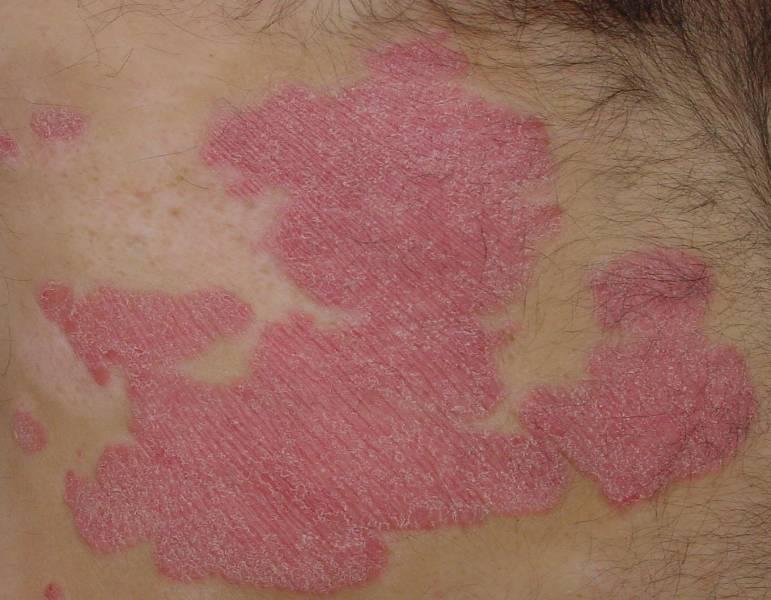 Le macchie rosse sulla pelle