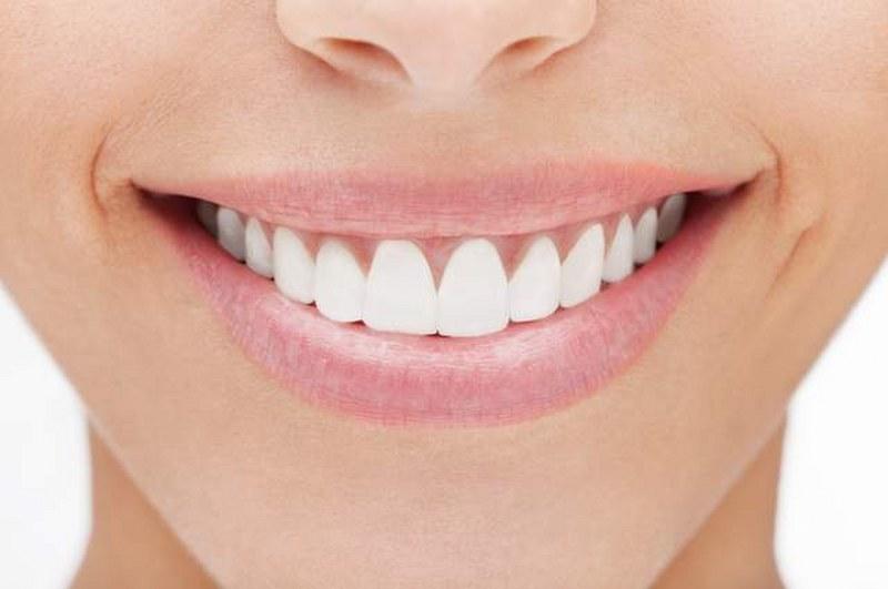 Estetica-dentale_