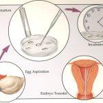fecondazione-in-vitro