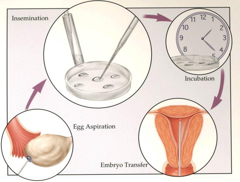 Come avviene la fecondazione in vitro?