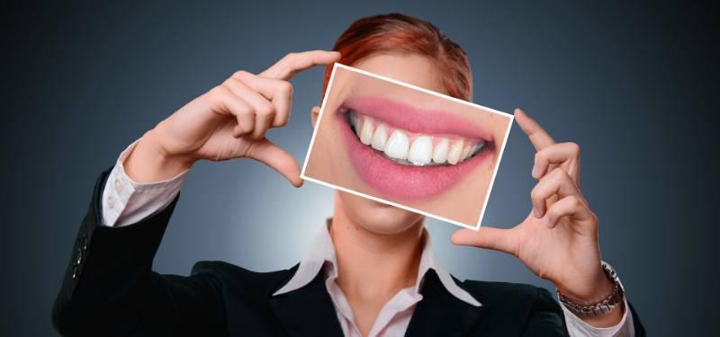 Come avere dei denti perfetti