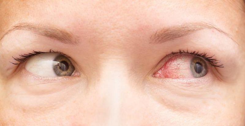 Infezioni oculari: tutto quello che si deve sapere per non avere problemi