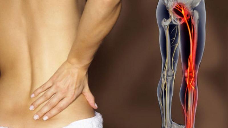 Le cause della sciatica: come riconoscere e curare la sciatalgia