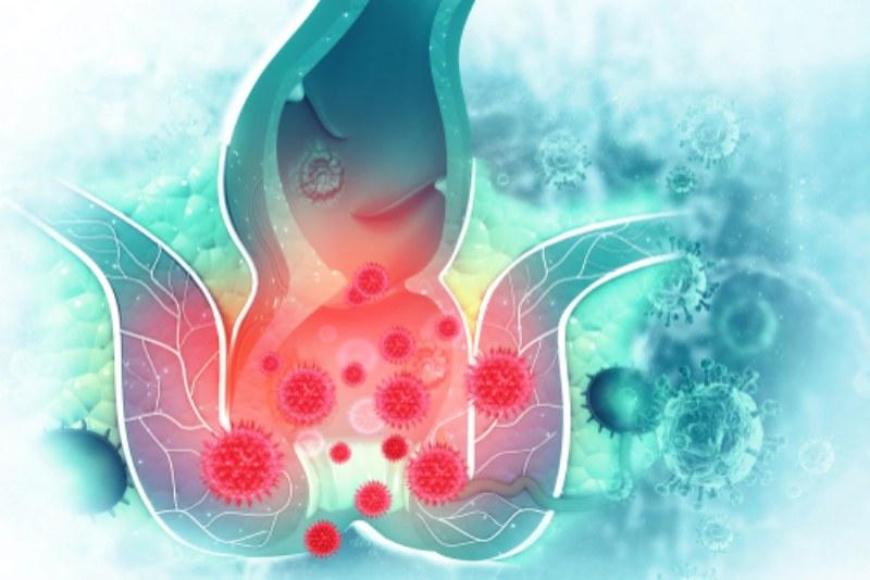 Sintomi delle emorroidi infiammate: scopriamoli e impariamo a gestirli