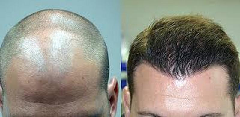 Qual è la migliore tecnica di trapianto di capelli?