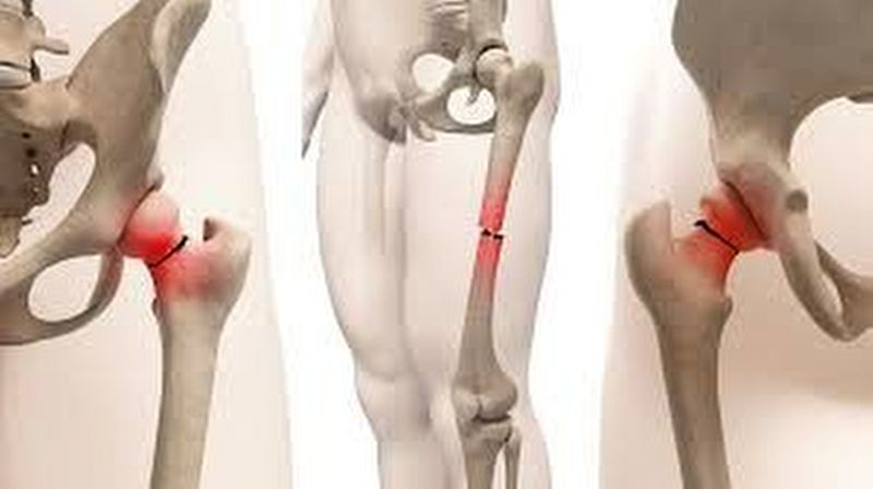 Frattura del femore nell'anziano non operabile: quali sono le cure previste