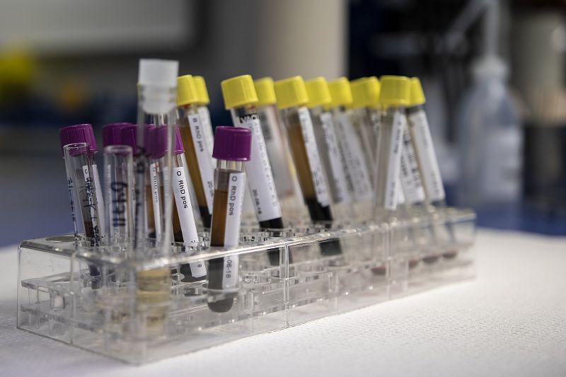 Proteina C reattiva alta e ves alta: cosa significano e come intervenire
