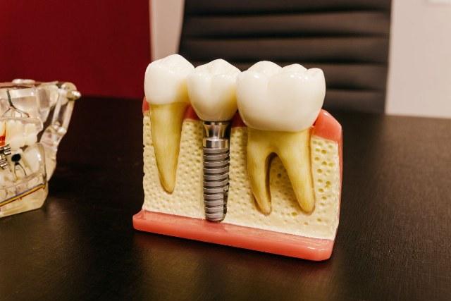 Implantologia a carico immediato: come funziona?